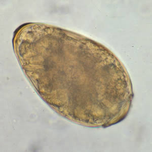 Figure A: Egg of <em>P. westermani</em> in an unstained wet mount.