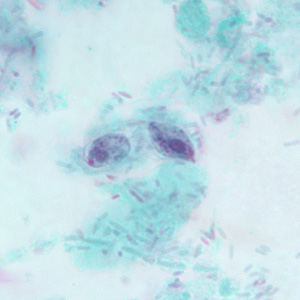 Figure D: Two trophozoites of <em>P. hominis</em> in a stool specimen, stained with trichrome.