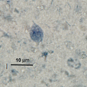 Figure F: Trophozoite of <em>P. hominis</em> in a stool specimen, stained with iron hematoxylin.