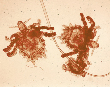 Figure C: Three specimens of <em>P. pubis</em> on a hair shaft.