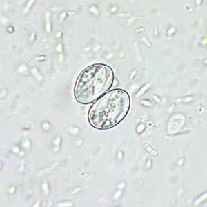Figure D: Sporulated oocyst of <em>Sarcocystis</em> sp. in unstained wet mounts, magnification 400x.