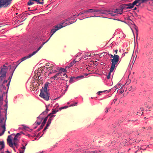Figure A: <em>Sarcoptes scabiei</em> mite in a skin biopsy, stained with H&E.