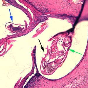 Figure B: <em>Sarcoptes scabiei</em> mites in a skin biopsy, stained with H&E. In this figure, both an adult (green arrow) and an egg (blue arrow) can be observed. Note also the presence of cuticular spines (black arrow) on the adult.