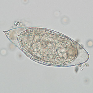 Figure C:Egg of <em>S. haematobium</em> in a wet mount of a urine concentrate.