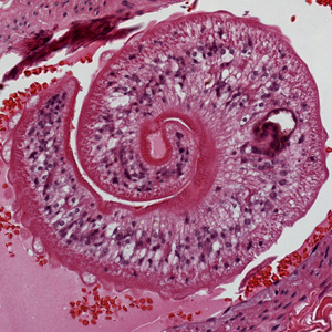 Figure B: Higher magnification of one of the worms in Figure A, showing the tuberculate exterior of the adult worm.