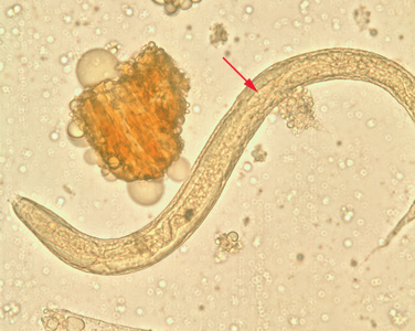 Figure B: Rhabditiform larva of <em>S. stercoralis</em> in unstained wet mounts of stool. Notice the short buccal canal and the genital primordium (red arrows).