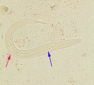 Figure E: Rhabditiform larva of <em>S. stercoralis</em> in an unstained wet mount of stool. Notice the rhabditoid esophagus (blue arrow) and prominent genital primordium (red arrow).