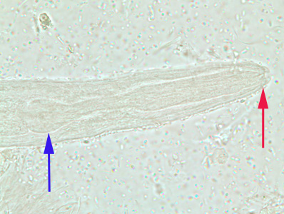 Figure C: Close-up of the anterior end of a rhabditiform larva of <em>S. stercoralis</em>, showing the short buccal canal (red arrow) and the rhabditoid esophagus (blue arrow). Image taken at 1000x oil magnification.