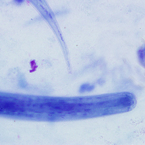 Figure C: Higher magnification (1000x oil) of the worm in Figure B. Notice the notched tail.