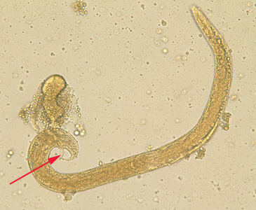Figure A: Free-living adult male <em>S. stercoralis</em>. Notice the presence of the spicule (red arrow).