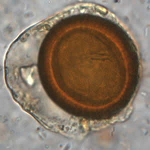 Figure D: Iodine-stained wet mount of a <em>Taenia</em> sp. egg. Image courtesy of the Oregon State Public Health Laboratory.