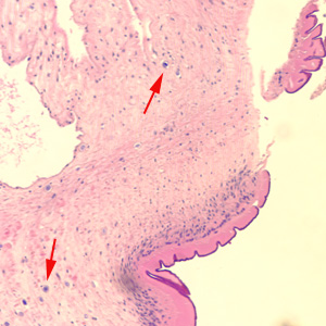 Figure A: Cross-section of a proglottid of <em>Taenia</em> sp., stained with H&E. Note the thick outer tegument and the loose parenchyma filling the body. Calcareous corpuscles (red arrows), characteristic of the cestodes, can be seen in the parenchyma. Image courtesy of the Washington State Public Health Laboratories.