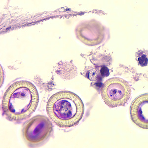 Figure C: Higher magnification of the image in Figure B, showing a close-up of the eggs. Note the characteristic striations, typical for the taeniids. Not visible in these images are the hooks commonly seen in cestode eggs. Hooks do not stain with H&E but are refractile and are visible with fine focusing of the microscope