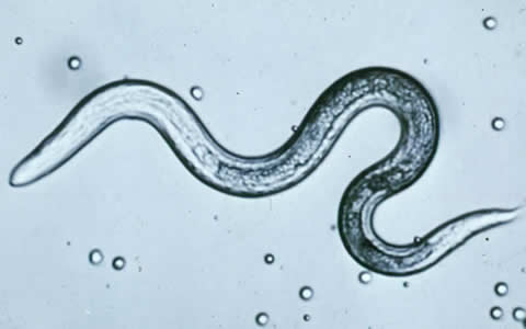 Cdc Dpdx Toxocariasis