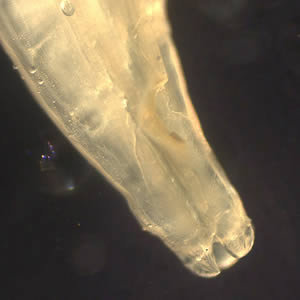 Figure B: Close-up of the anterior end of <em>Toxocara</em> sp., showing the three lips characteristic of ascarid worms. Image courtesy of the New Jersey State Public Health Laboratory.