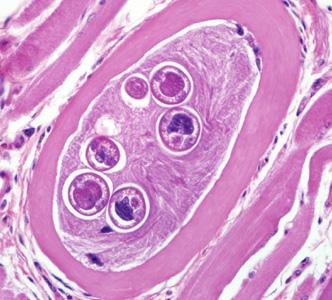 trichinella trichinosis