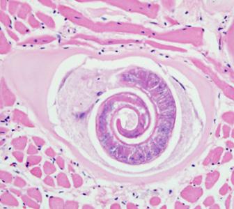 trichinella spiralis életciklusa)