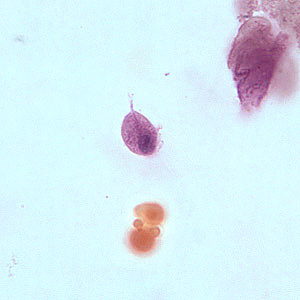 Figure D: Trophozoite of <em>T. vaginalis</em> in a vaginal smear, stained with Giemsa.