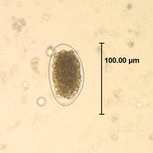Figure A: Egg of <em>Trichostrongylus</em> sp. in an unstained wet mount of stool.