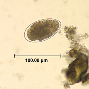 Figure B: Egg of <em>Trichostrongylus</em> sp. in an unstained wet mount of stool.