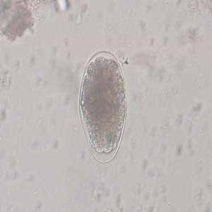 Figure C: Egg of <em>Trichostrongylus</em> sp. in an unstained wet mount of stool. Image courtesy of the Indiana State Department of Health.