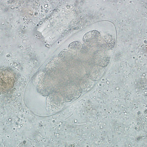 Figure D: Egg of <em>Trichostrongylus</em> sp. in an unstained wet mount of stool. Image courtesy of the Indiana State Department of Health.