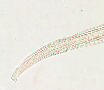 Figure A: Anterior end of a female <em>Trichostrongylus</em> sp. Image of a glycerin-mounted specimen, taken at 200x magnification.