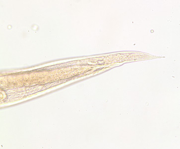 Figure B: Posterior end of the same specimen as Figure A. Note the pointed tail. Image taken at 200x magnification.