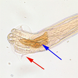 Figure D: Posterior end of a male <em>Trichostrongylus</em> sp. Note the presence of a bursa (red arrow) and spicule (blue arrow). of a glycerin-mounted specimen, taken at 200x magnification.