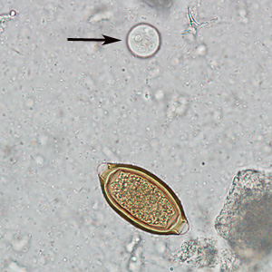 Figure F: Egg of <em>T. trichiura</em> in an unstained wet mount of stool. Notice also the presence of a cyst of <em>Entamoeba coli</em> (arrow).