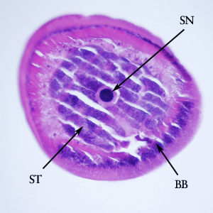 Figure F: Cross-section of the anterior end of the specimen in Figures D and E. Notice the bacillary band (BB), a stichocyte (ST) and stichosome nucleus (SN).