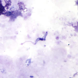 Figure A: <em>Trypansoma brucei</em> ssp. in a thick blood smear stained with Giemsa.