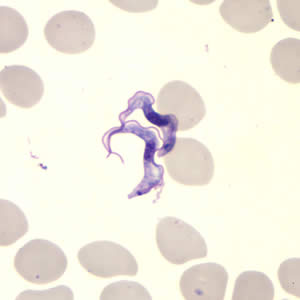 Figure B: <em>Trypanosoma brucei</em> ssp. in a thin blood smear stained with Giemsa.