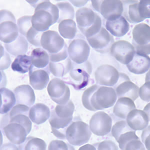 Figure A: <em>T. cruzi</em> trypomastigote in a thin blood smear stained with Giemsa. Note the typical C-shape of the trypomastigote that characterizes T. cruzi in fixed blood smears.