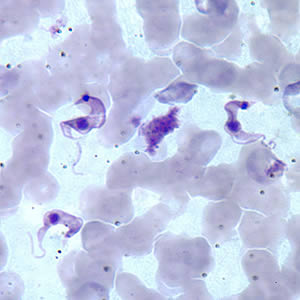 Figure B: Three <em>T. cruzi</em> trypomastigotes in a thin blood smear stained with Giemsa.