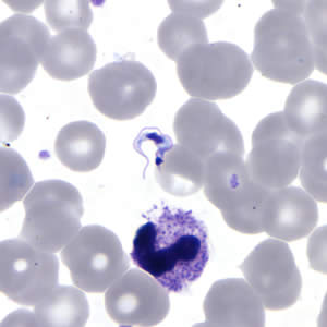 Figure C: <em>T. cruzi</em> trypomastigote in a thin blood smear stained with Giemsa.