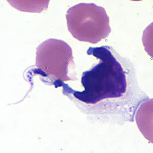Figure A: <em>Trypanosoma cruzi</em> trypomastigote in cerebrospinal fluid (CSF) stained with Giemsa.