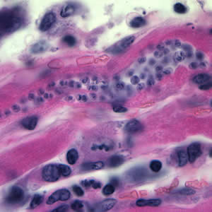 Figure A: <em>Trypanosoma cruzi</em> amastigotes in heart tissue. The section is stained with hematoxylin and eosin (H&E).