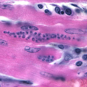 Figure C: <em>Trypanosoma cruzi</em> amastigotes in heart tissue. The section is stained with H&E.