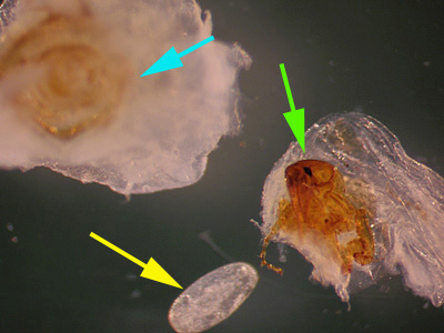 Figure A: <em>Tunga penetrans</em> removed from a lesion on the bottom of the foot of a patient who traveled to Africa. The bulk of the lesion and the posterior part of the flea are marked with a blue arrow. The anterior end of the flea, showing the head, mouthparts and forelegs, is marked with a green arrow. Note the lack of pronotal and genal combs. A single egg (yellow arrow), is also shown.