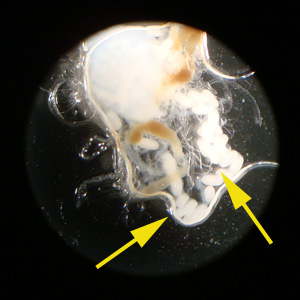 Figure B: Eggs of <em>T. penetrans</em> liberated from the lesion on the second toe of a patient who traveled to Guyana. Image courtesy of Spectrum Health, Grand Rapids, MI.