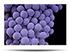 Staphylococcus aureus (VRSA)