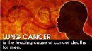 eCard: Lung Cancer