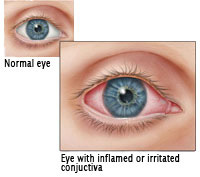 Normal eye vs. eye with inflamed or orritated conjuctiva