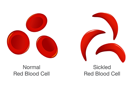 Sickle Cell Has Many Faces