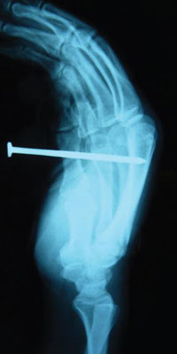 X-ray of nail gun injury