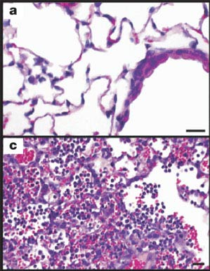 The 1918 virus was extremely virulent. Image a) shows mouse lung tissue infected with a human seasonal H1N1 flu virus. Image c) shows the impact of the 1918 virus in mouse lung tissue. The 1918 virus replicates quickly and causes severe disease in the lung tissues of mice. In 1918, the virus caused severe disease in the lungs of people infected, as well. Photo credit: CDC, <em>Science</em>.