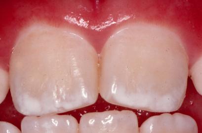 how to get enamel back on teeth