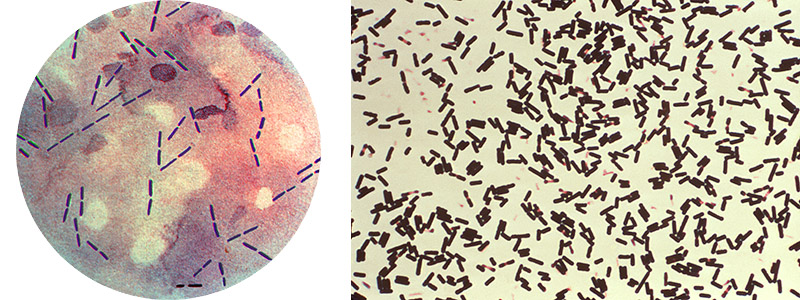 A photomicrographic view of a Gram-stained culture specimen from a patient with gas gangrene, and revealed the presence of numerous Clostridium perfringens Gram-positive bacteria. A photomicrograph reveals numbers of Clostridium perfringens bacteria that had been grown in Schaedler's broth, and subsequently stained using Gram-stain.