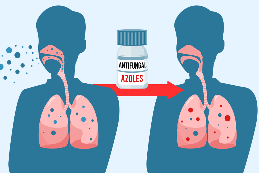 Lungs before and after treatment. Left is infected with blue dots and the right is treated having red and blue dots.